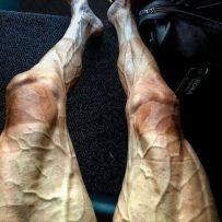 How a Cyclist's Legs Look After the Tour De France (ow, ow, ow, ow) - p.poljanksi (boredpanda.com)