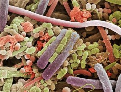 Bacteria on the surface of a human tongue - from 'Microcosmos' by Brandon Broll (amazon.com)